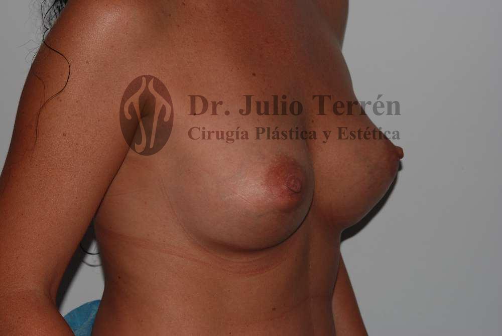 Foto después intervención de mamoplastia aumnto Dr. Terrén