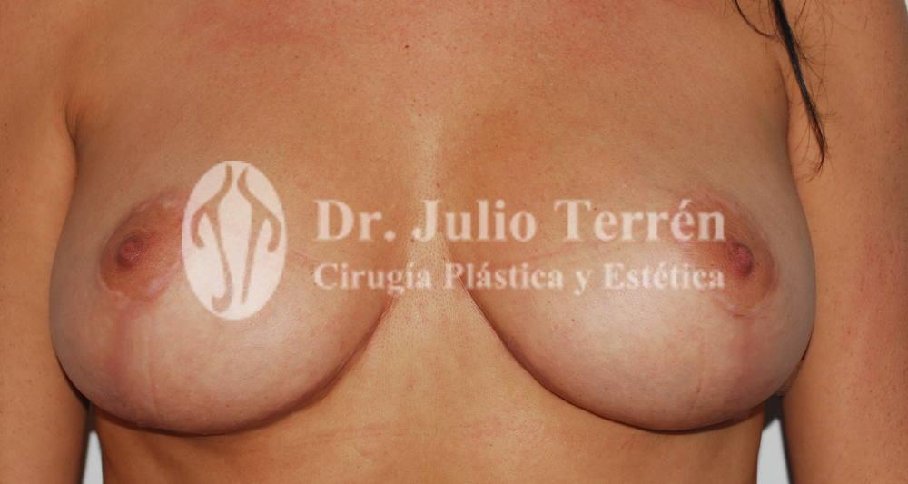 Foto de despues de la mastopexia realizada por Dr. Terren