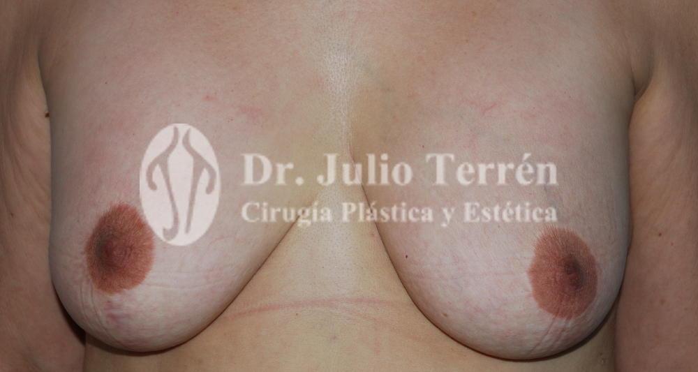 Elevación de senos antes