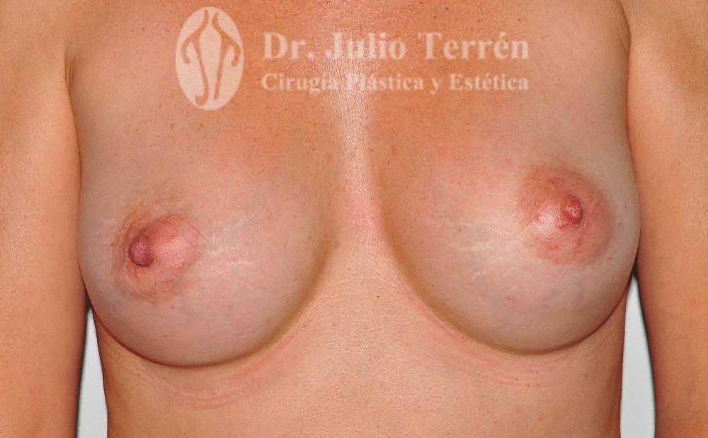 foto del despues de la cirugía o Resultado de la operacion de senos tuberosos