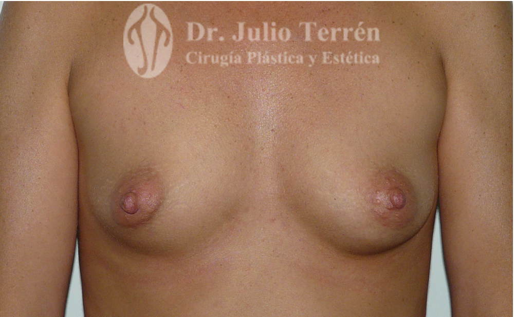 Foto de senos tuberosos antes